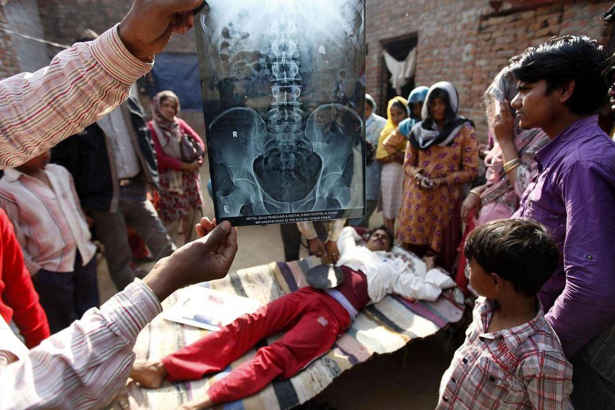 In this Feb. 4, 2011 photo, Nasir Khan writhes in pain from kidney stones, as his brother holds up an x-ray, and another uses a hot pan to keep his wound warm at their home in Aligarh, India. Doctors said Khan would need a fourth surgery, and already in d