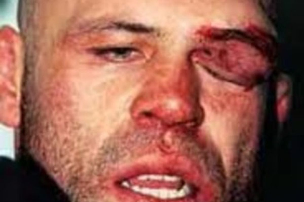 """""""The Axe Murderer"""" and the cut that helped build a legend."""