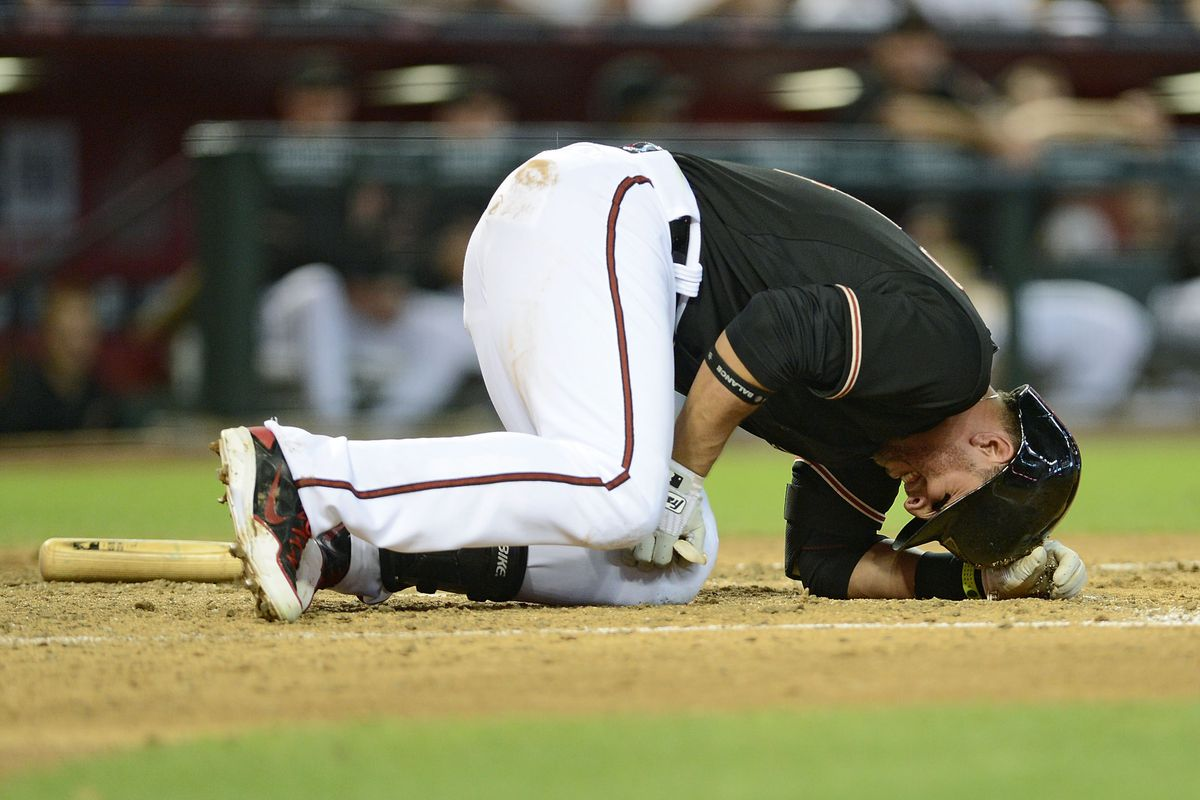 This is why Prado is not in the line-up tonight.