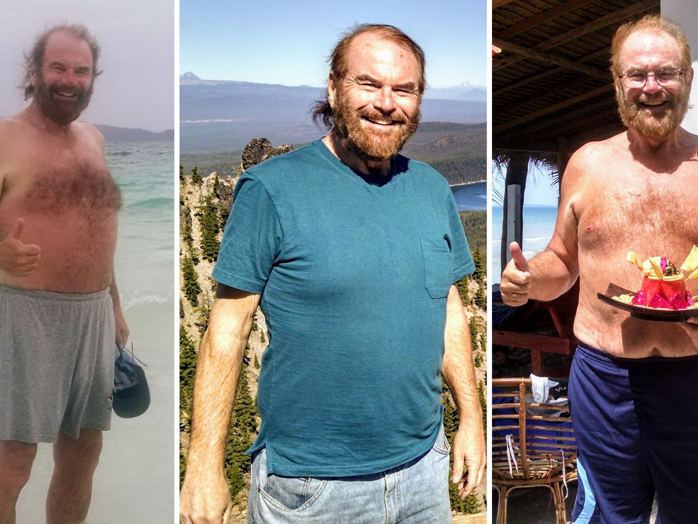 Does Bariatric Surgery Work 11 Patients Share Their Stories Vox