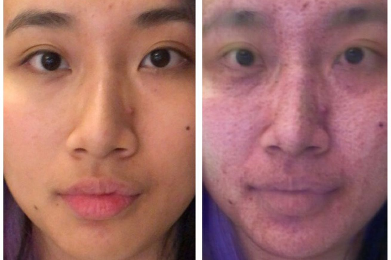 i used a makeup removal app repeatedly to turn into an acne covered zombie