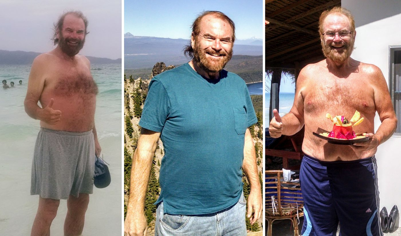 Does bariatric surgery work 20 patients share their stories.   Vox