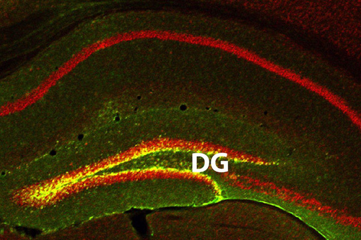 memory brain scan (Columbia University)