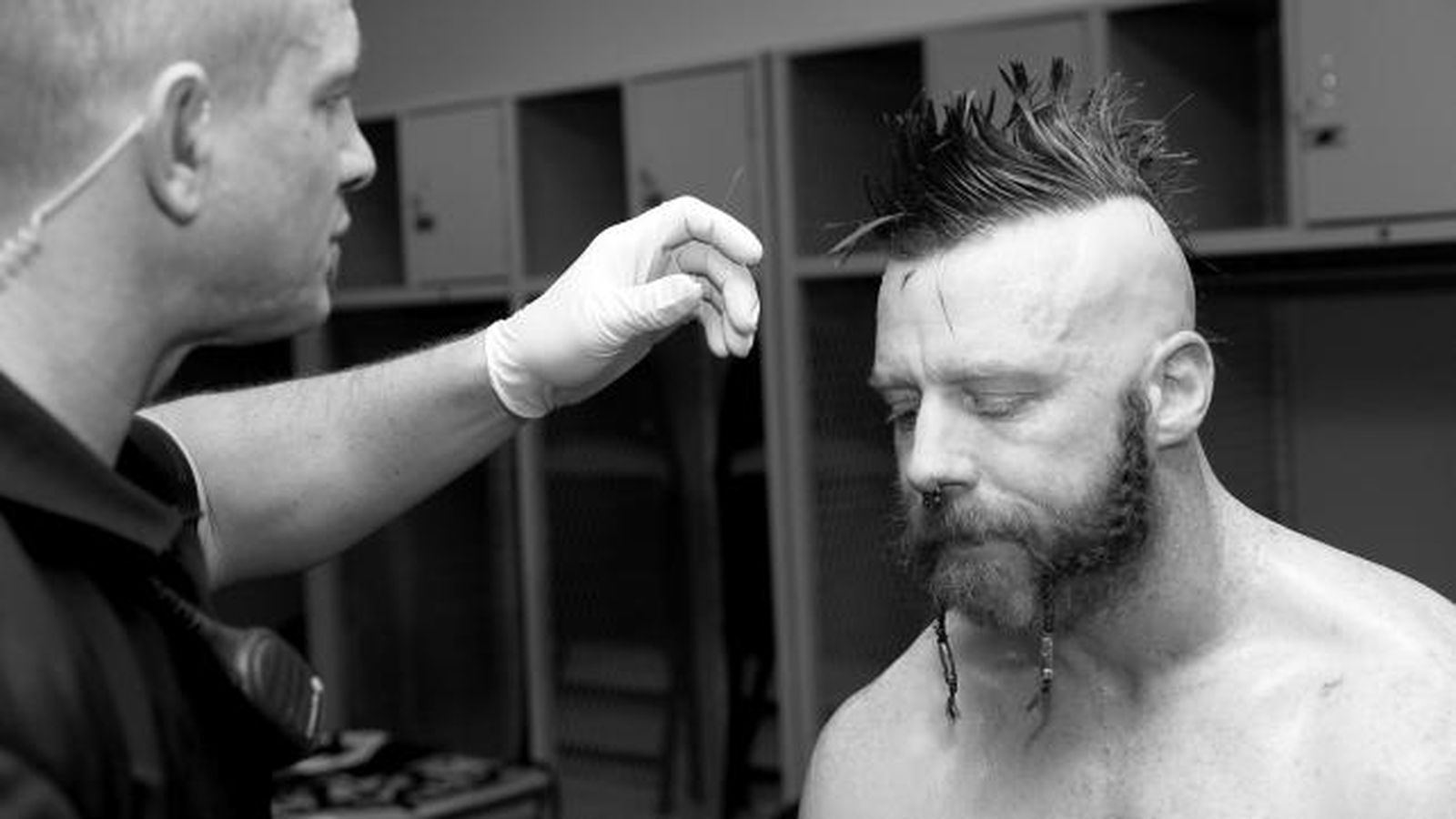 photo of sheamus in an arm cast raises injury questions