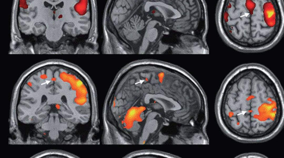 This Is What Your Brain Looks Like During An Orgasm - Vox-7981