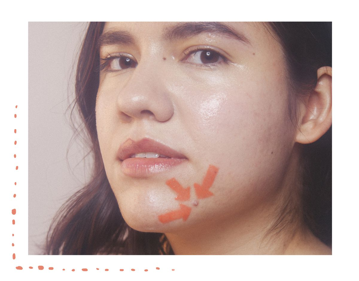 How To Treat Acne According To A Dermatologist Racked