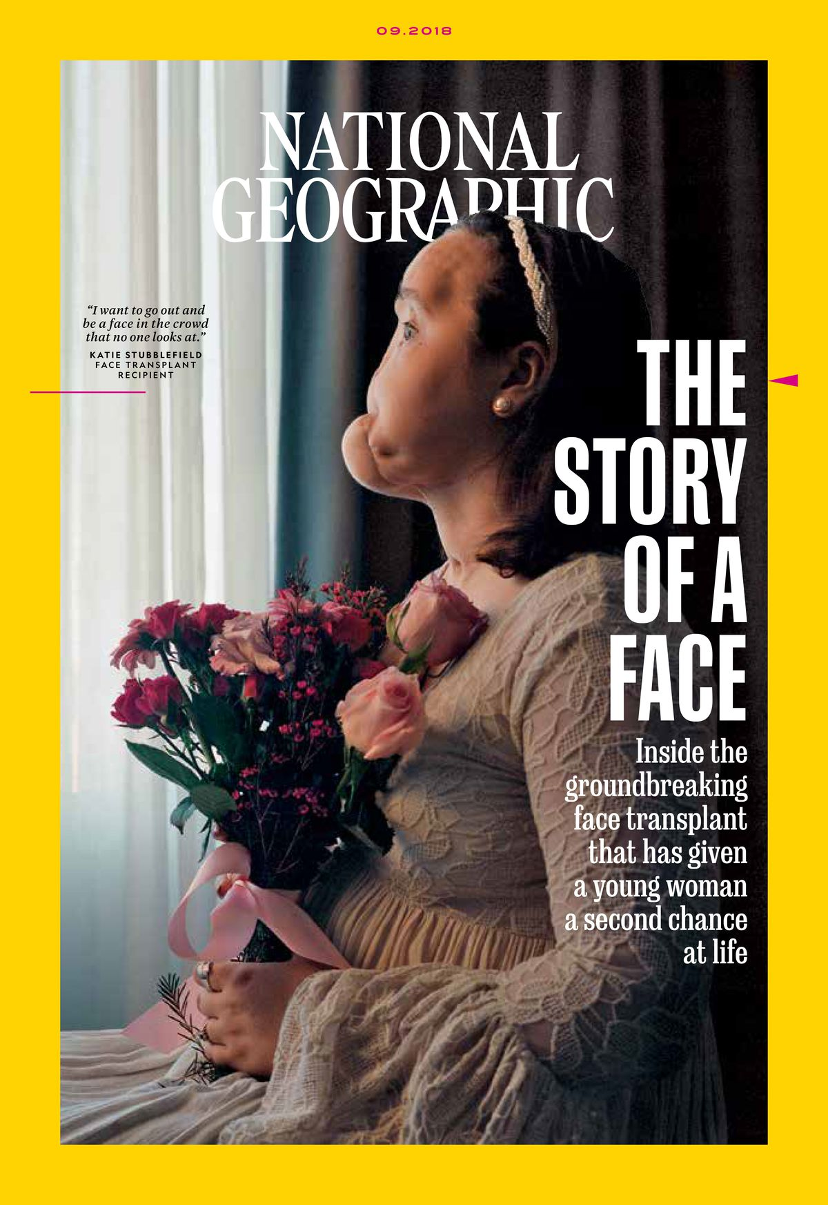 """The cover of the September issue of National Geographic features a pre-transplant portrait of Katie Stubblefield. The photographer wanted to show """"her inner beauty and her pride and determination."""" 