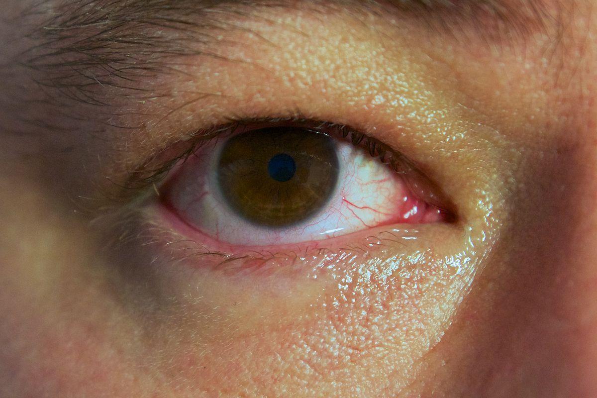 A Bloodshot Eye Paul Hudson Flickr