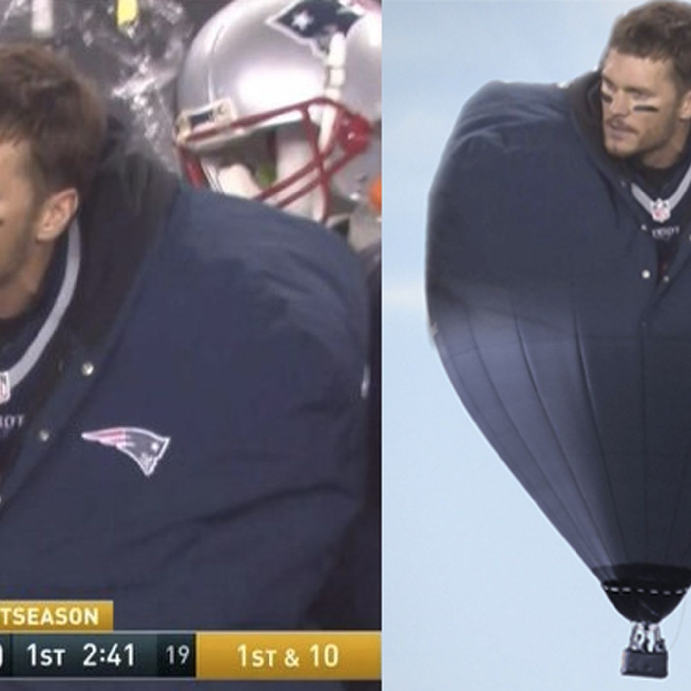Tom Brady Wore A Giant Coat Against The Steelers And We Loved It