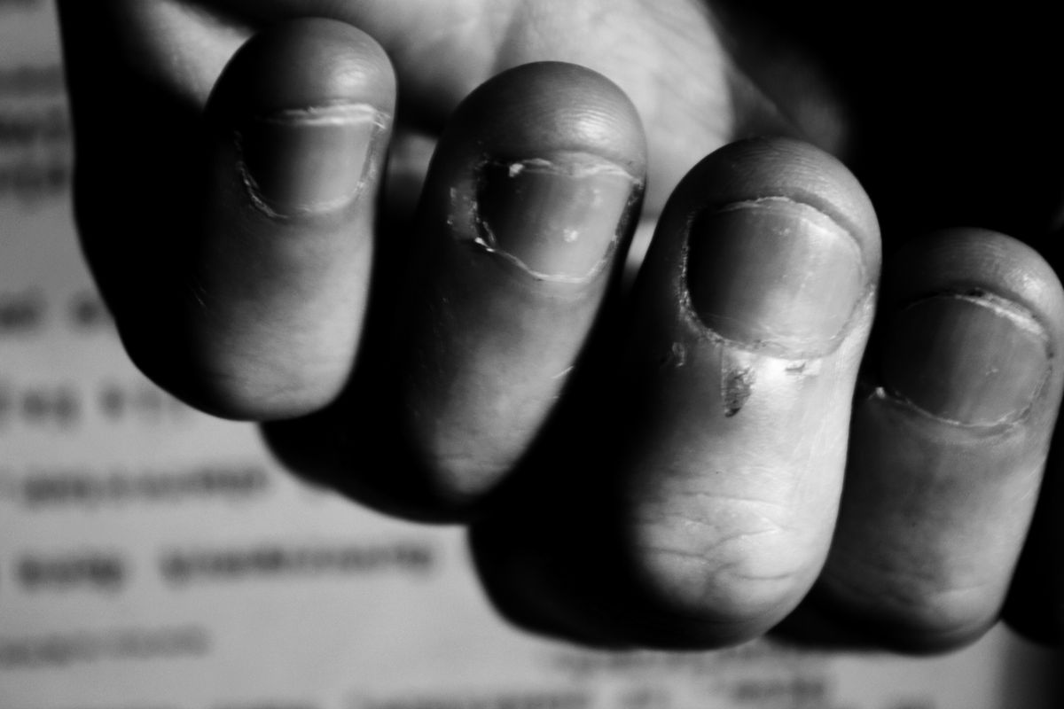 The Psychology Of Why So Many People Bite Their Nails Vox