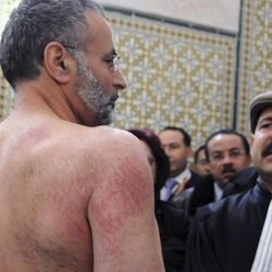 FILE - In this Dec. 29, 2010 file photo, Tunisian lawyer Abdraouf Ayadi, left, shows injuries to his back he claims were caused by police officers, during a press conference at the lawyers' Bar in Tunis. Ayadi and lawyer Chokri Belaod, right, were arrested for supporting protests over unemployment in the central town of Sidi Bouzid.  For decades, Tunisia has promoted itself as an Arab world success story, a place where the economy is stronger than in neighboring countries, women's rights are respected, unrest is rare and European tourists can take stress-free vacations at beach resorts. But the recent protests have exposed a side of Tunisia that the country has long tried to hide: the poverty of the countryside, poor job prospects for youths and seething resentment at the government of President Zine El Abidine Ben Ali, who has ruled Tunisia with an iron fist since 1987.