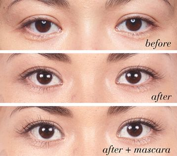 Eyelashes before and after a growth serum
