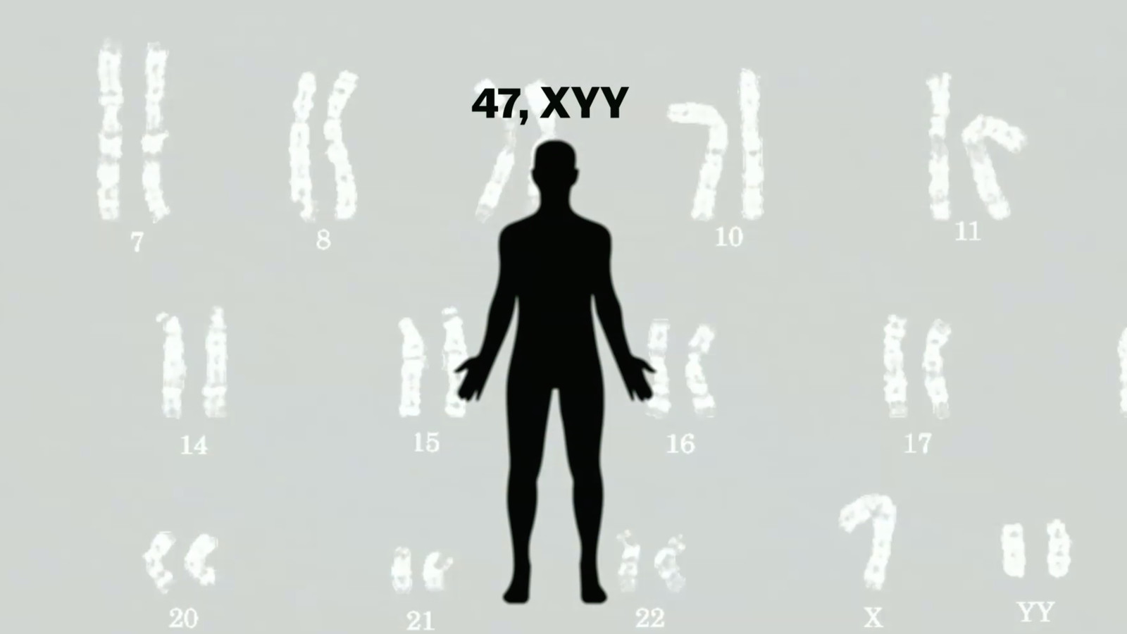 Diagnosis and mortality in 47,XYY persons: a registry study