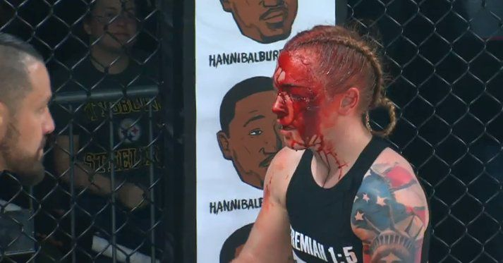 Kal Schwartz Scores Absurdly Bloody Knockout Of Kay Hansen