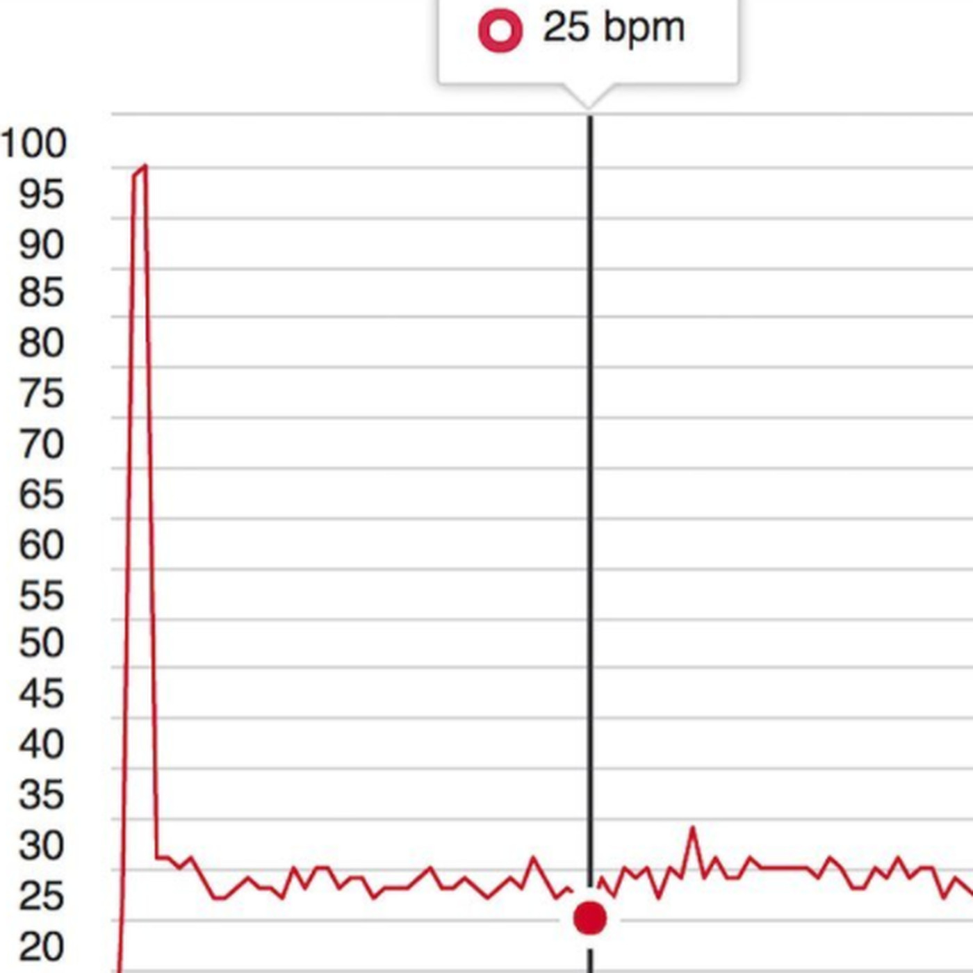 This French Biathletes 25 Bpm Resting Heart Rate Is So Low Its