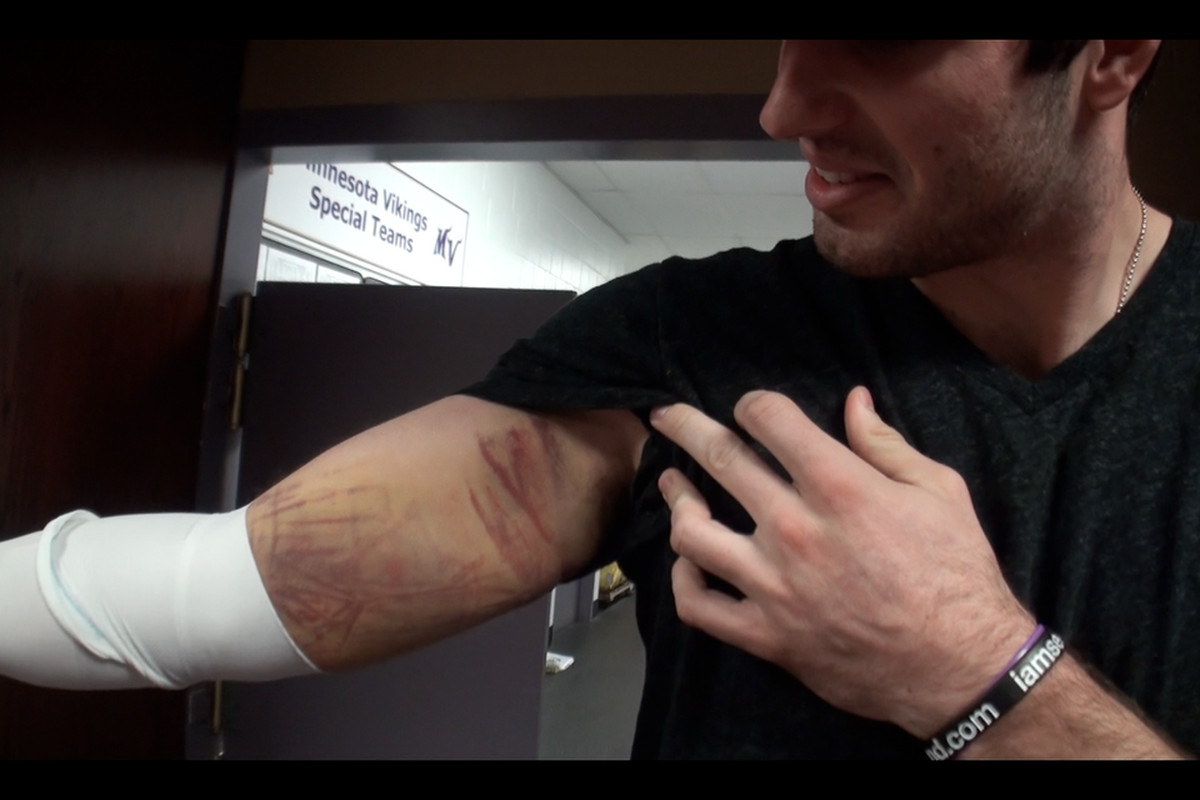Nine days after banging it on the helmet of Packers' safety Morgan Burnett, Christian Ponder's elbow/triceps still looks like this.
