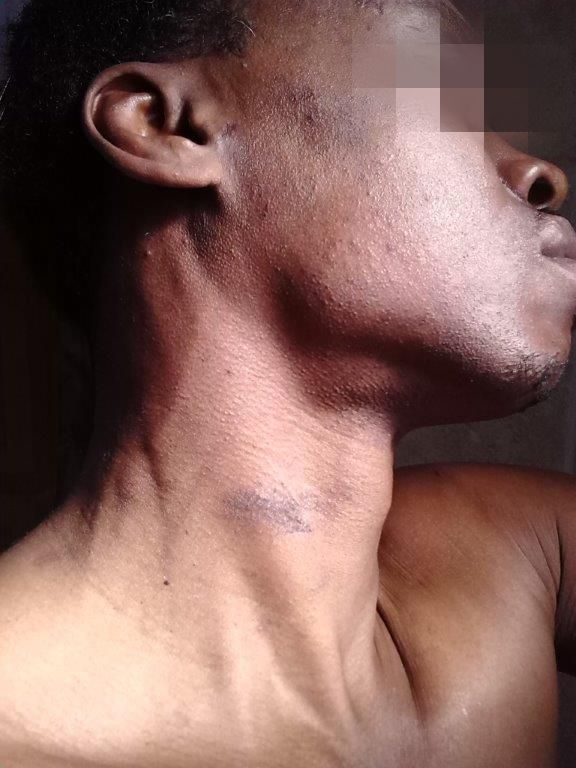 Darren Clemons says he was beaten up by Chicago Police Officer Jason Van Dyke. The photo was provided on the condition his face was blurred.