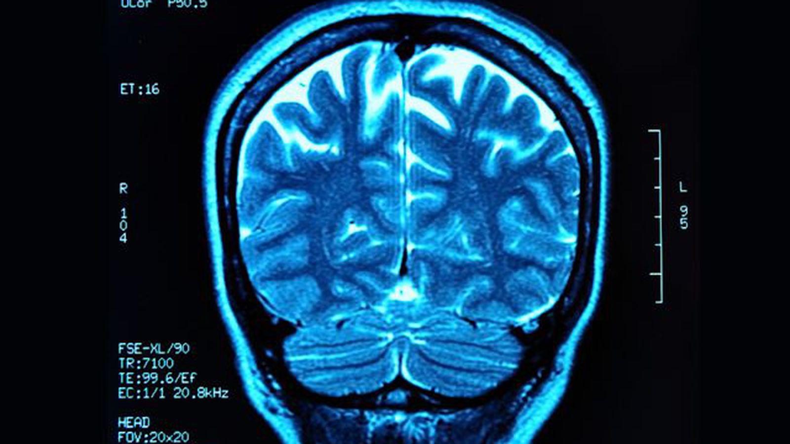 МРТ головного мозга в Москве адреса цены Где можно