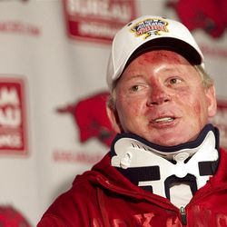 Arkansas football coach Bobby Petrino speaks during a news conference earlier this week after a motorcycle accident.