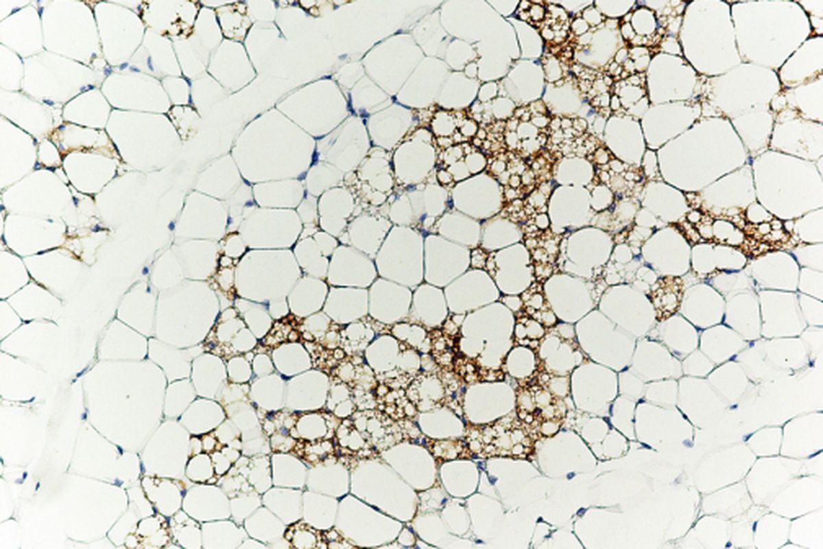 Brown fat cells (stained brown with antibodies against the brown fat-specific protein Ucp1) nestled in amongst white fat cells.