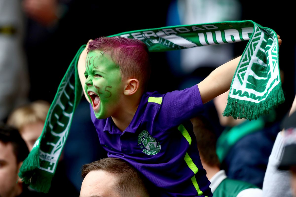 Hibernian v Dundee United - William Hill Scottish Cup Semi Final