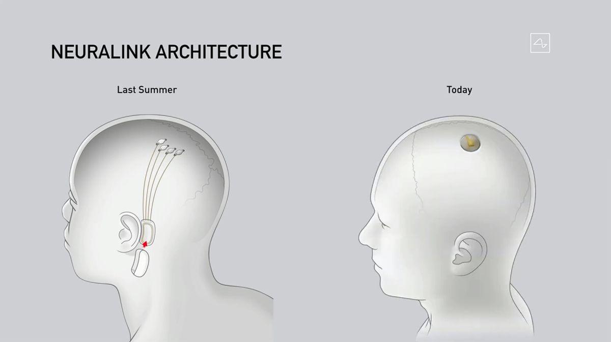 Neuralink Architecture