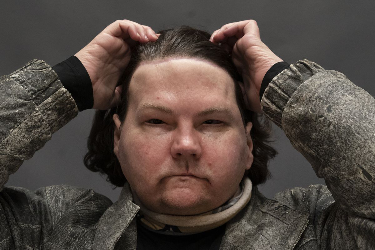 Joe DiMeo brushes back his hair while posing for a portrait, Monday, Jan. 25, 2021 at NYU Langone Health in New York, six months after an extremely rare double hand and face transplant.