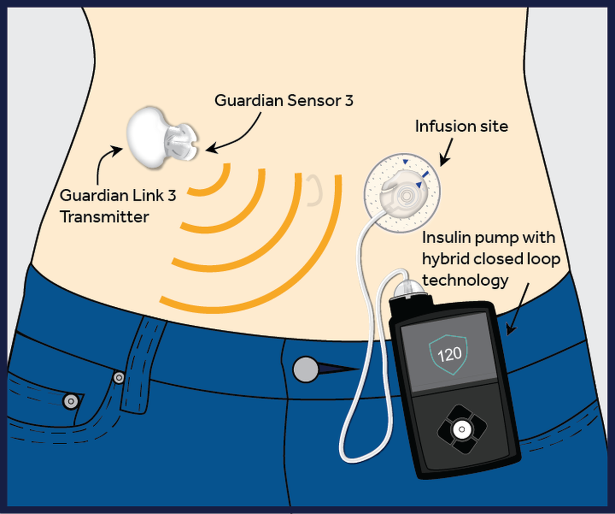 We finally have an artificial pancreas for diabetes but its a artificial pancreas system pooptronica Choice Image