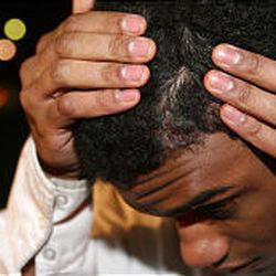 Cedric Wilson, 18, shows the injuries to his scalp that he suffered in the mall shootings. The Rodizio Grill employee said the gunman pointed a shotgun at him and fired. The blast grazed his head.