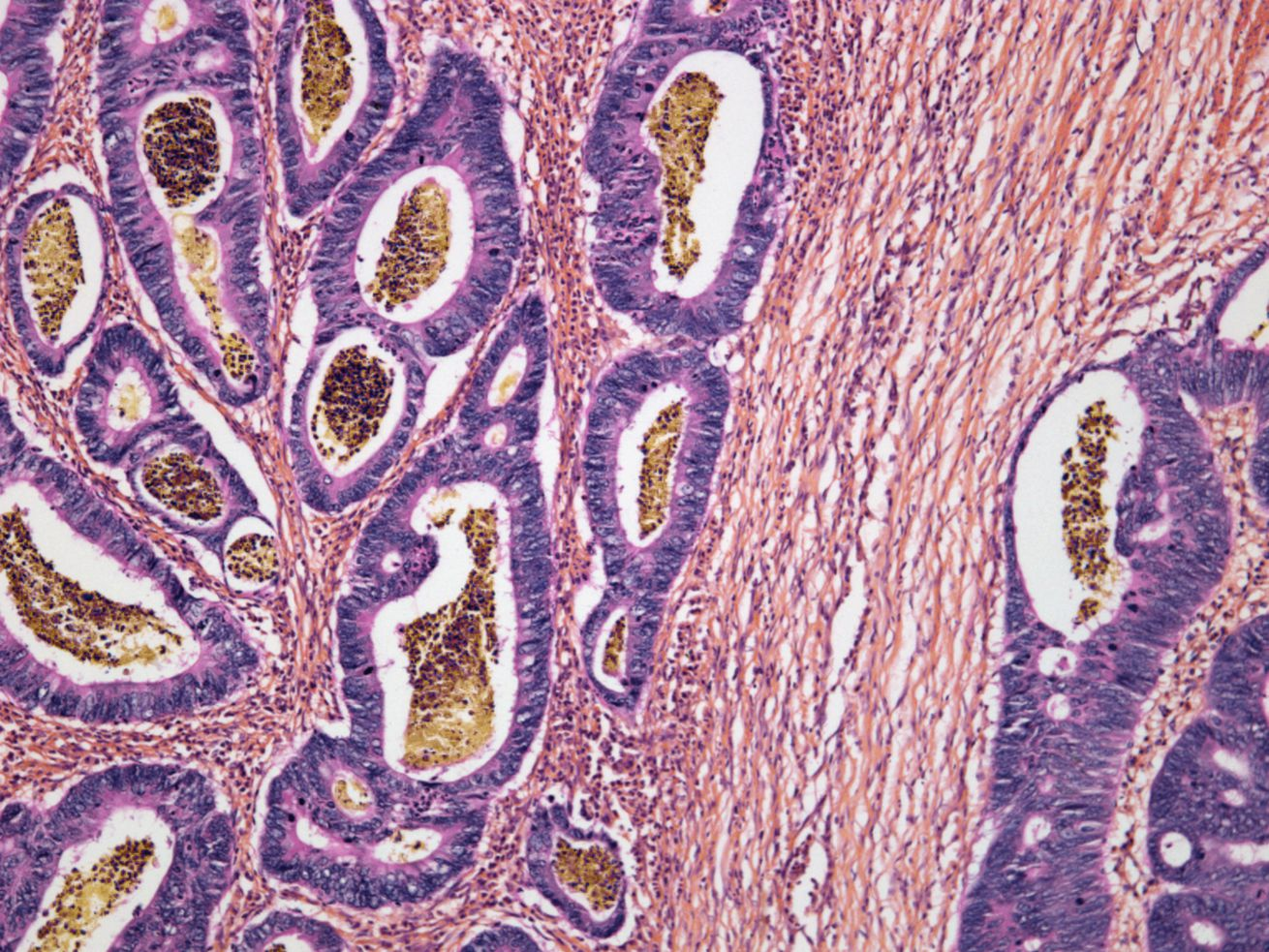 A micrograph of colon cancer cells. Overall, those born in 1990 have double the risk of developing colon cancer and four times the risk of getting rectal cancer compared to those born around 1950.