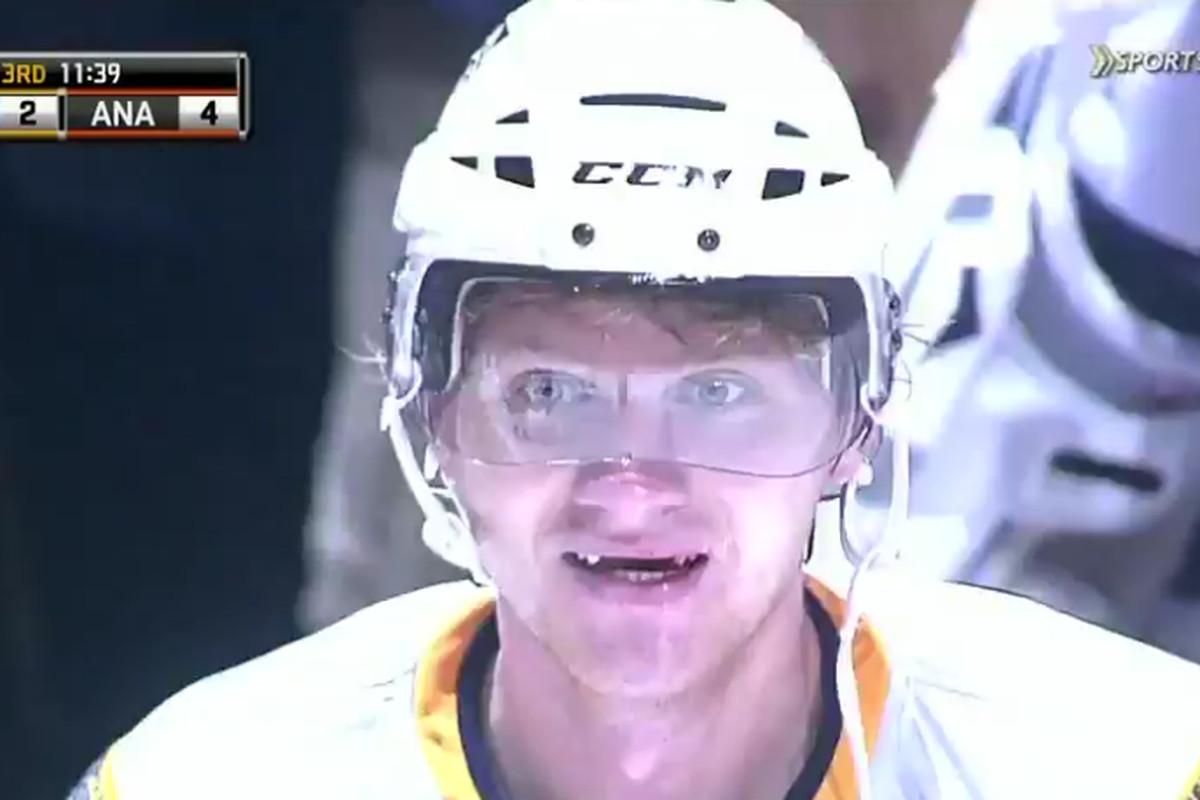 No teeth, no problem for Martin Erat.