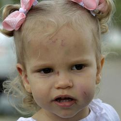 Abigail Jones, 19-months-old, watches as her mother Misty, not shown, responds to a reporters' question Wednesday, April 4, 2012, in Forney, Texas. Abigail, who was found in a pile of rubble, survived a tornado that completely destroyed the home of her babysitter with just minor scrapes and bruises.