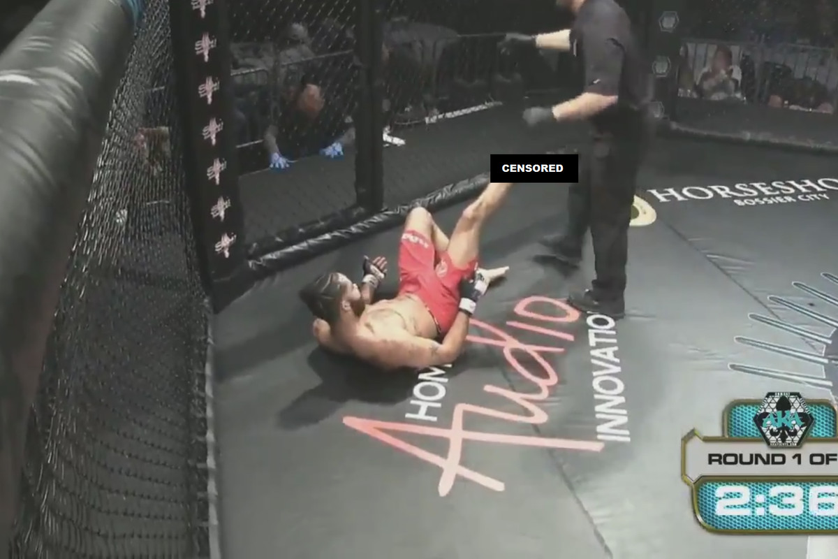 Amateur combatant Jonathan King suffered a terrifying leg injury on the  undercard of American Kombat Alliance's 'Rite of Passage 6' fight card when  his low ...