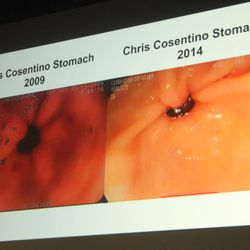 Chris Cosentino's stomach suffered third-degree alkaline burns from his time on food TV.