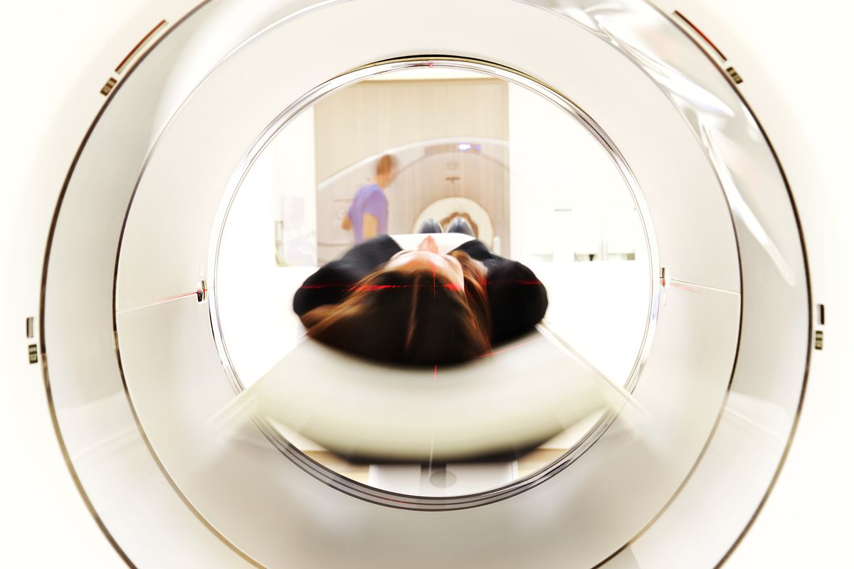View through a MRI scanner while a patient being prepared for head scan. Certificate of Need laws in North Carolina make it difficult for imaging centers to obtain an MRI machine.
