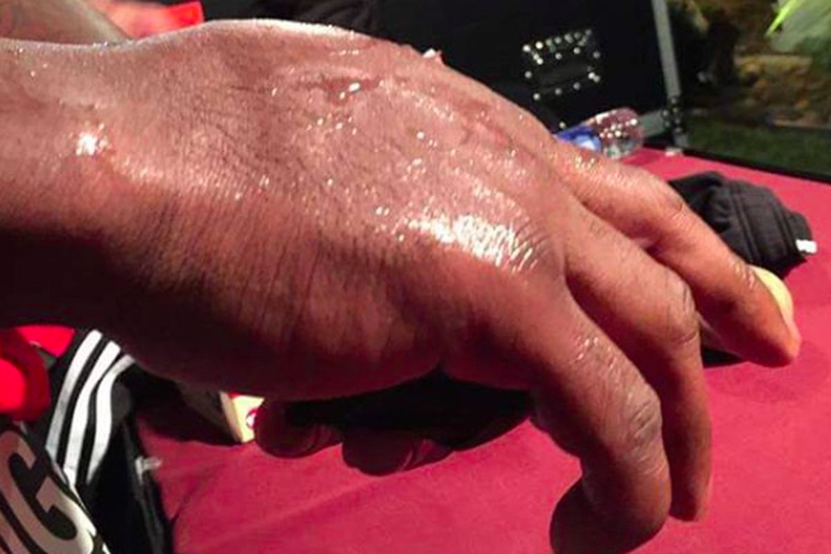 Pic Melvin Guillard Suffers Gruesome Broken Hand At Bellator 141