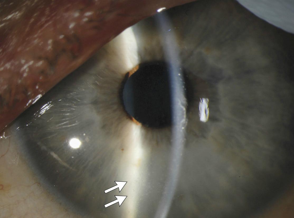eye ball ebola