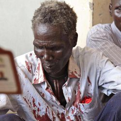 """In this photo of Saturday, April 14, 2012,  a victim of the bombings in Bentiu is cared  by hospital staff. Two Sudanese Sukhoi fighters dropped 6 bombs in the Bentiu area, killing five and wounding four others. Two Sudanese warplanes dropped """"many bombs"""" Monday April 16, 2012, on the oil-rich city of Heglig, as long-range artillery targeted southern army positions in the disputed town, said southern army spokesman Col. Philip Aguer. He did not give a casualty figure. He also said Monday that Sudan's air force killed five civilians in aerial attacks Sunday over Heglig. Aguer also said that the town of Bentiu in South Sudan's Unity State was hit and that the conflict has spread to several southern states bordering Sudan, including Western Bahr el Ghazal."""