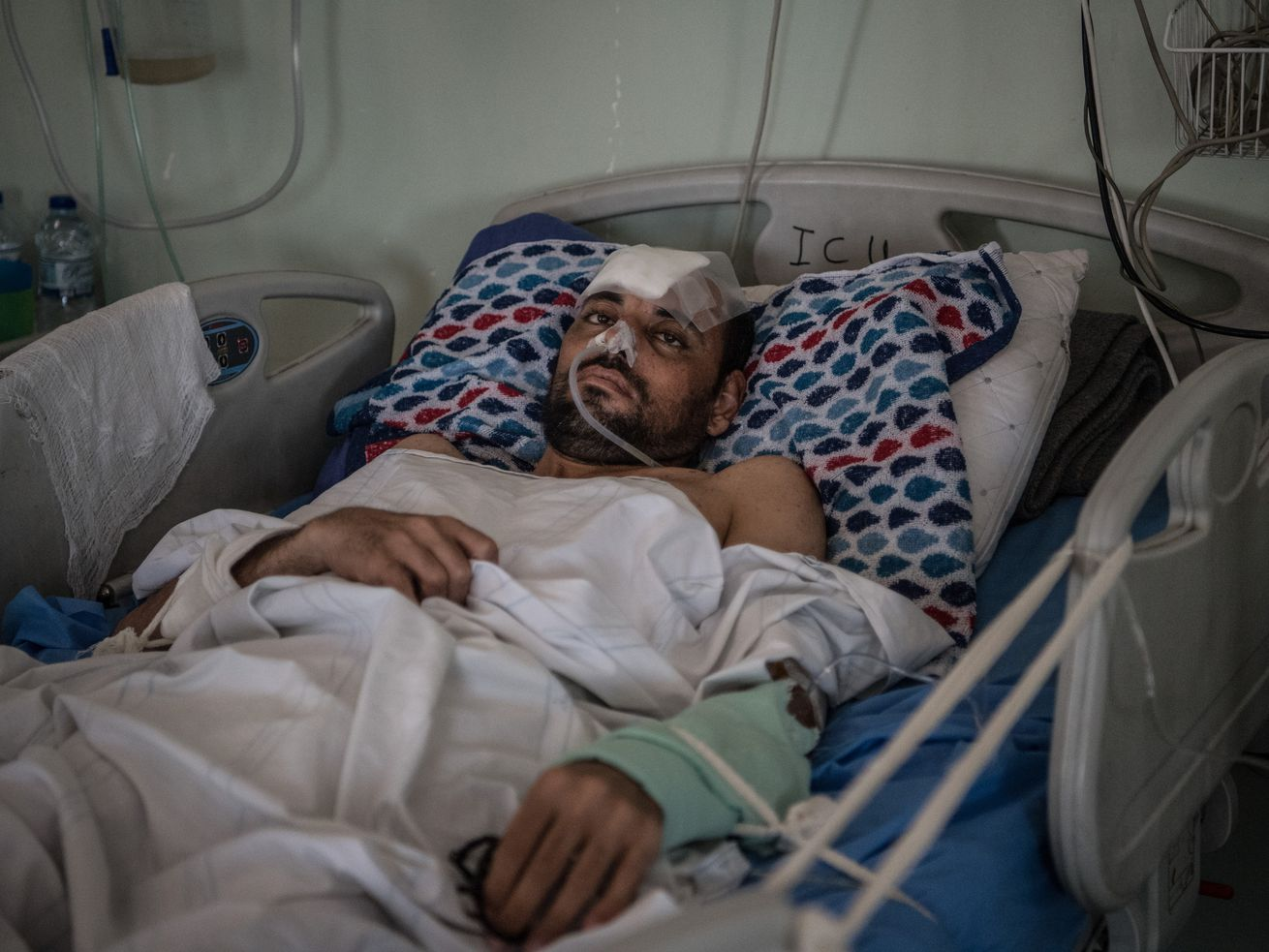 An Iraqi man received serious injuries after an April 2017 airstrike in Mosul.