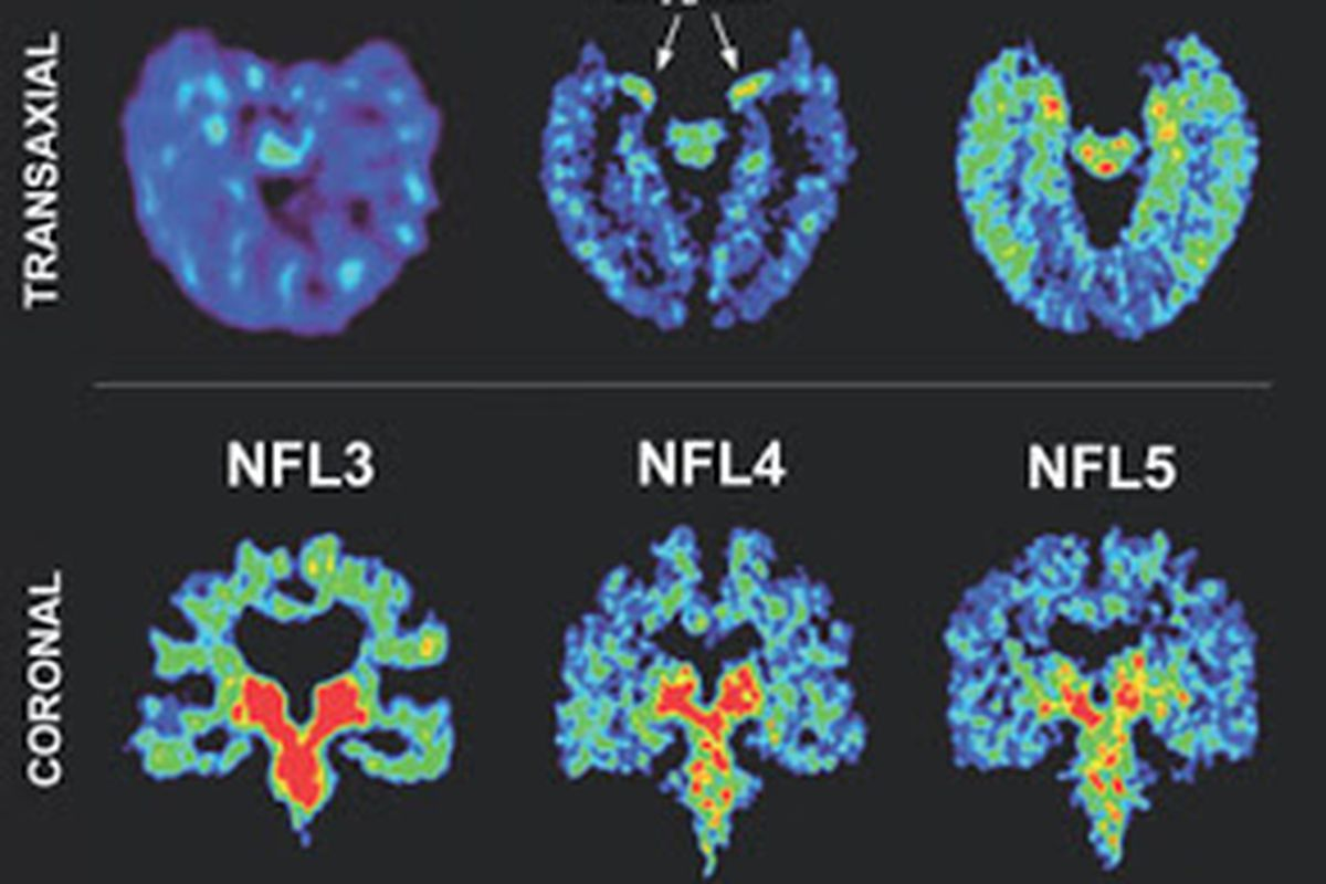 Cte  >> Ready For Some Head Trauma What To Make Of Cte In The Nfl News