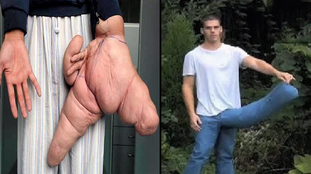 Top 10 Amazing Of World's Biggest Human Body Parts : Trends