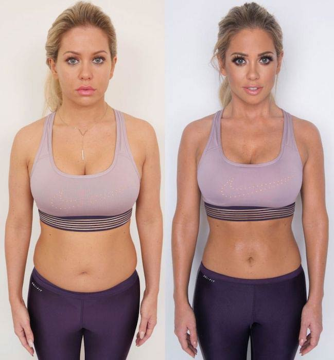 If You Want Lose Belly Fat Follow These Amazing Secrete Tips : Weight Loss