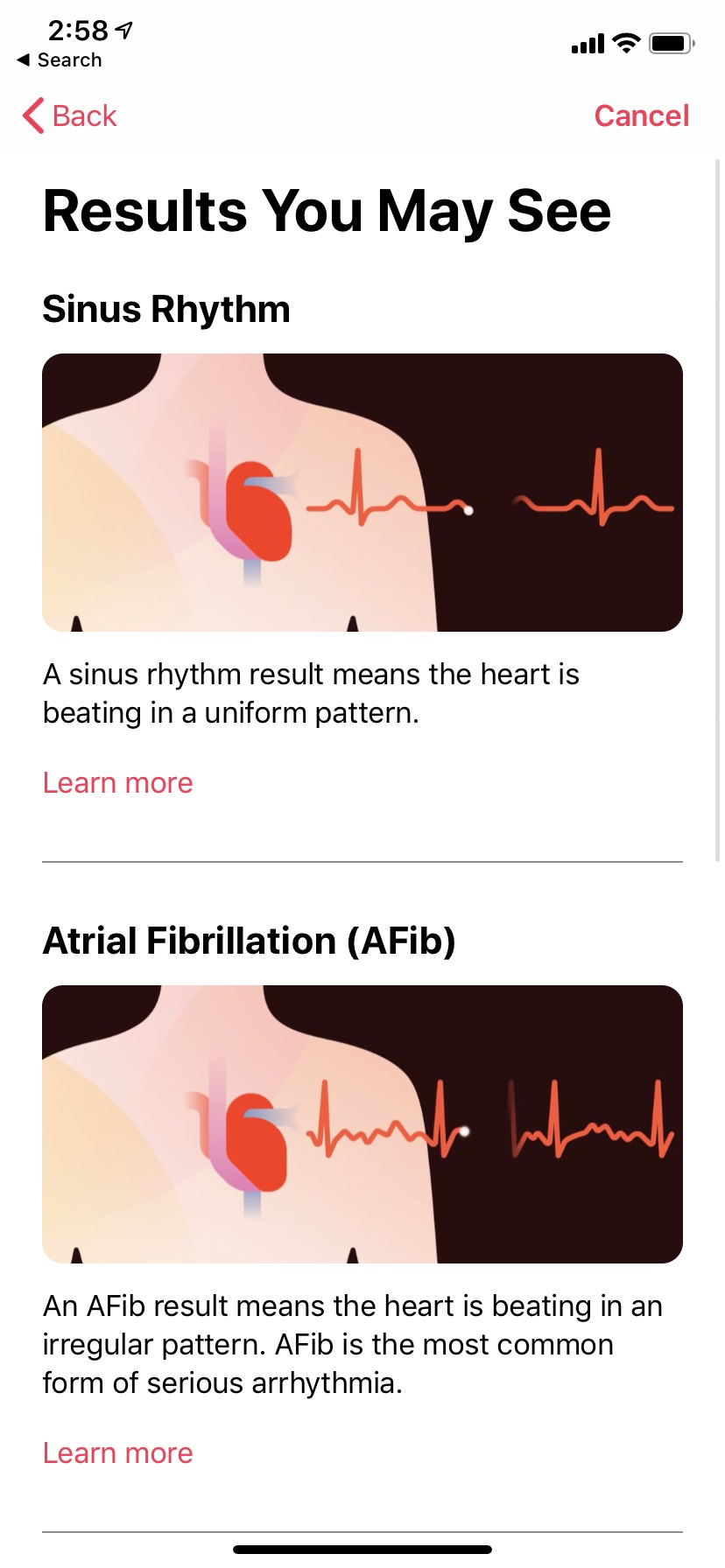 Apple Watch electrocardiogram and irregular heart rate features are