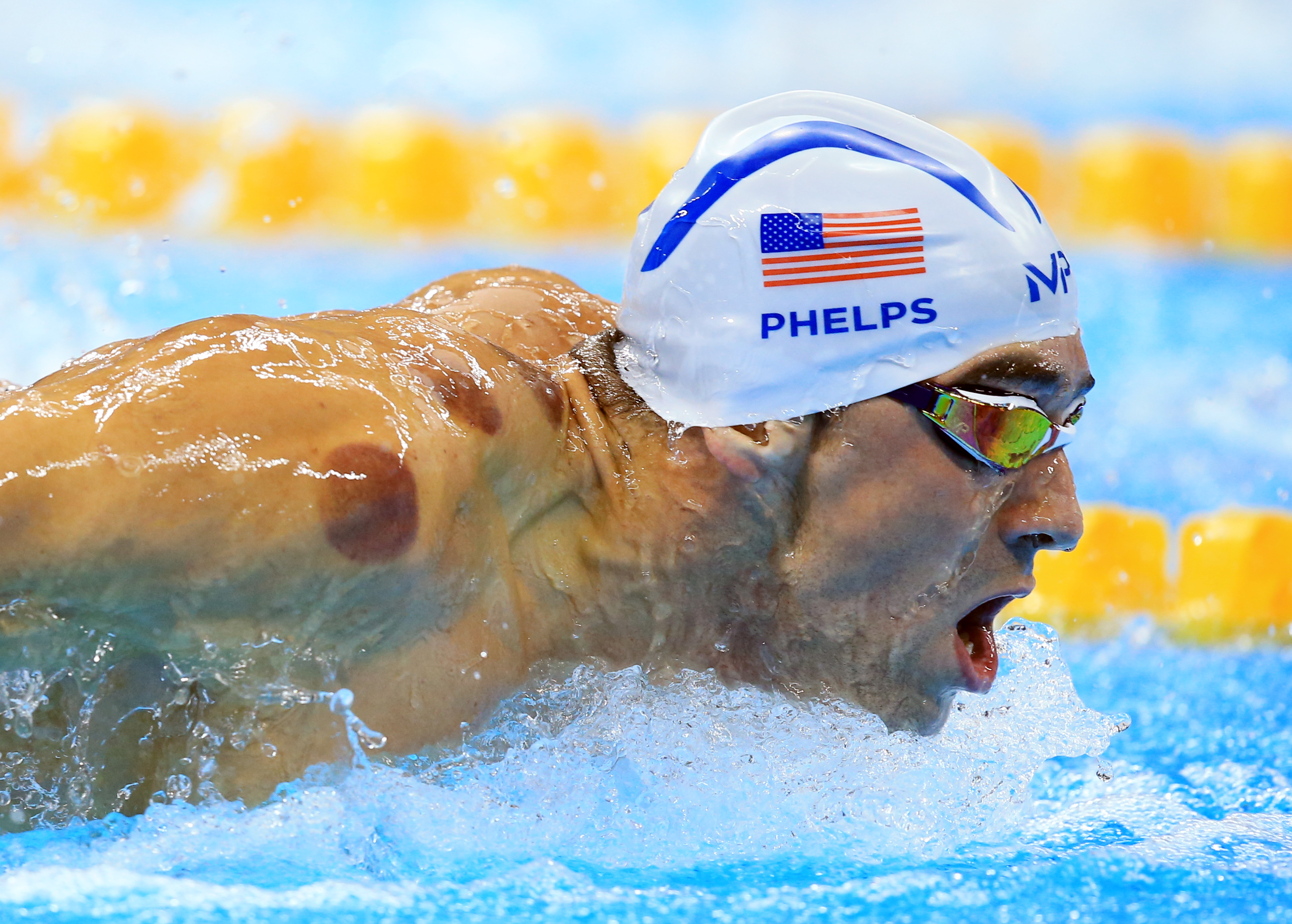 Michael Phelps uses cupping to ease his muscle pain. What does science say?