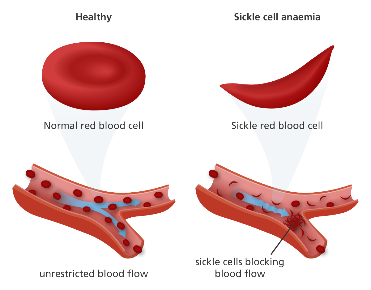 the characteristics and treatment of sickle cell anemia a blood disorder The reason that symptoms come and go is that the red blood cells can behave  normally for much of the time - but if.