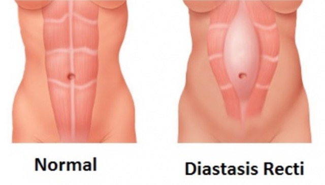 Diastasis recti, the post-pregnancy belly problem