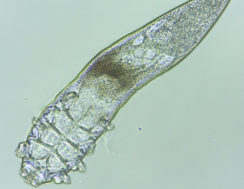 Don T Freak Out But There Are Thousands Of Mites Living All Over Your Face