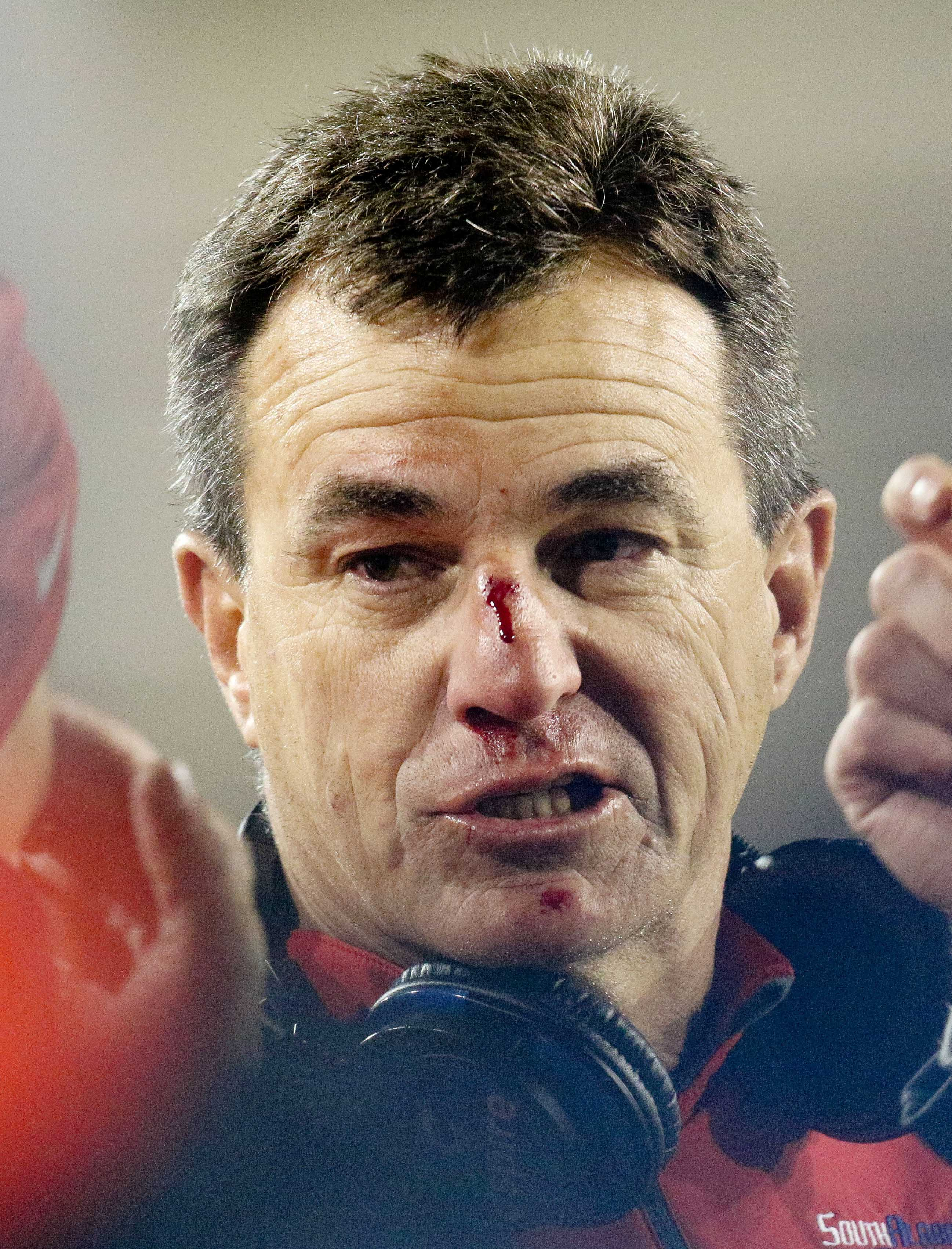 It seems that no matter what happens with South Alabama and Joey Jones, it will always be bloody.