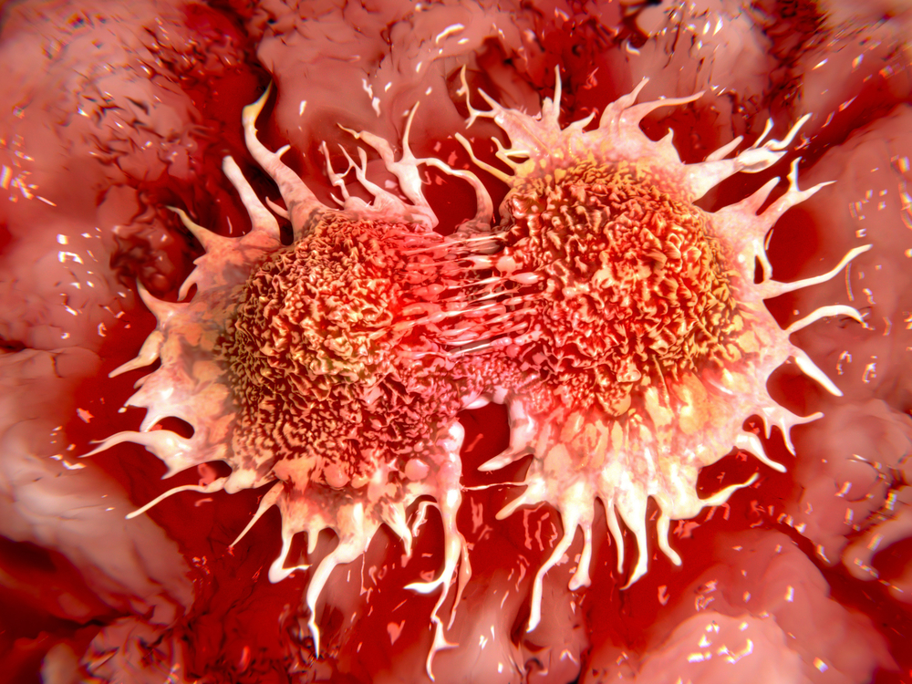 "Why we need to redefine the ""cure"" for cancer"