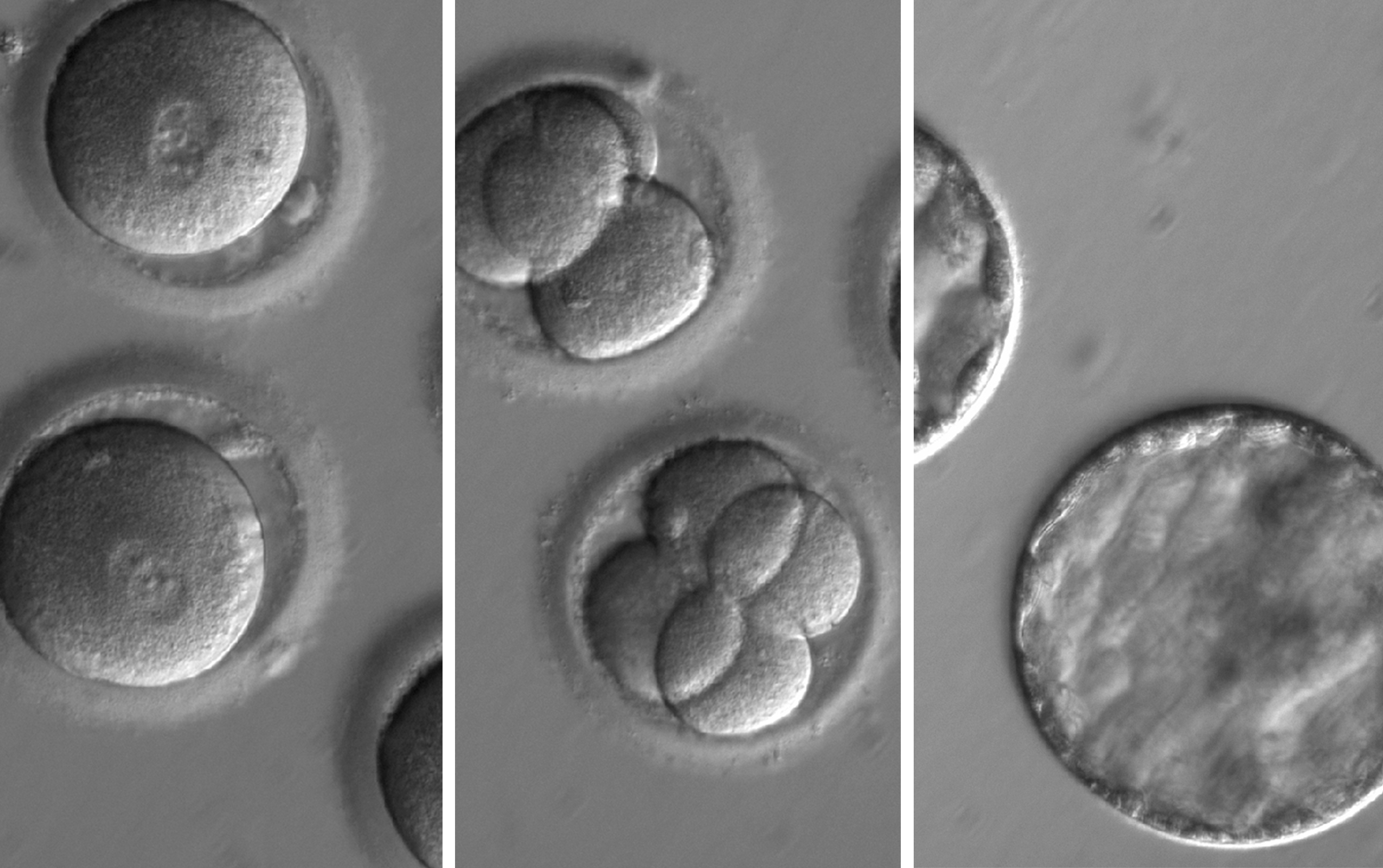 Scientists successfully used CRISPR to fix a mutation that causes disease. This is huge.